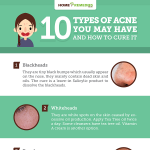 10-Types-of-Acne-You-May-Have-And-How-to-Cure-It-infographic-plaza