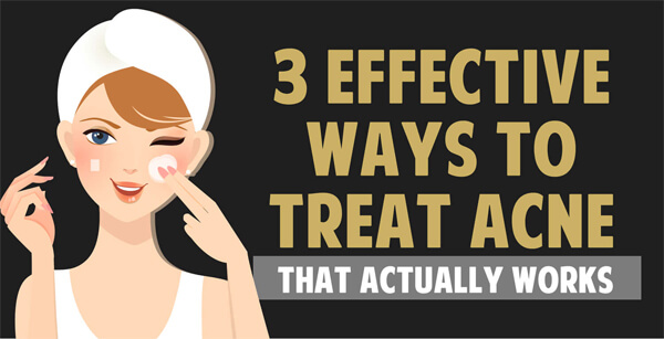 3-Effective-Ways-to-Treat-Acne-Infographic-plaza-thumb