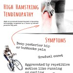 ACL-Injury-and-Return-to-Sport-infographic-plaza