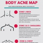 Body-acne-map-infographic-plaza