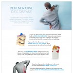 Degenerative-Disc-Disease-by-South-County-Spine-Center-infographic-plaza