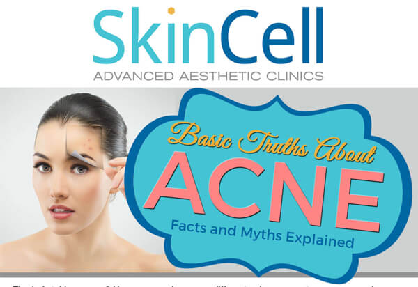 INTERESTING-FACTS-AND-MYTHS-ABOUT-ACNE-infographic-plaza-thumb
