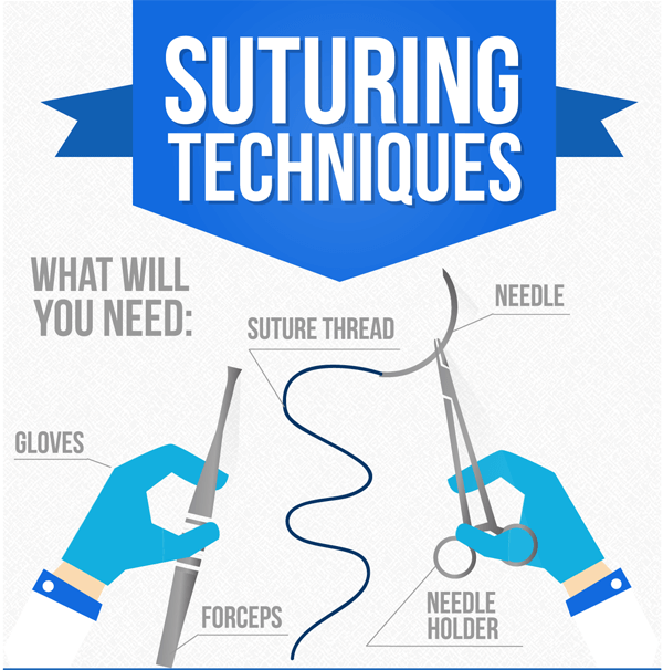 Suturing_techniques_guide-infographic-plaza-thumb