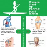 common-stand-up-paddle-board-injures-infographic-plaza