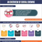dental-crowns-overview-infographic-plaza