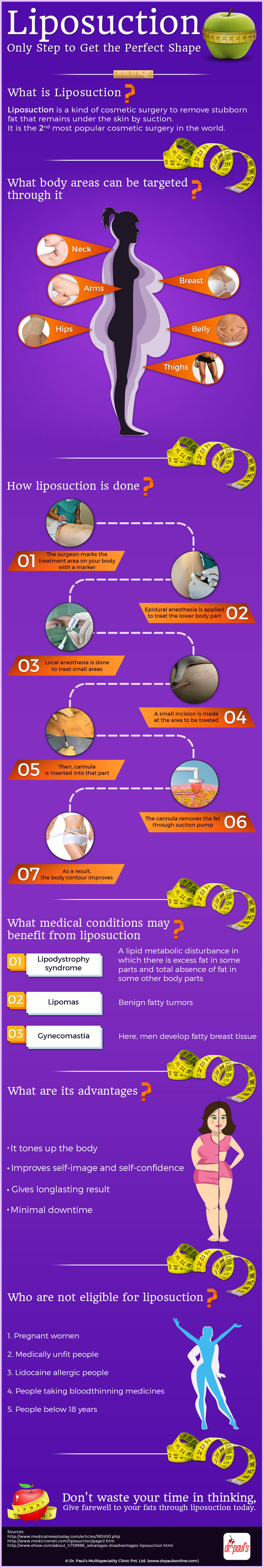 liposuction-infographic